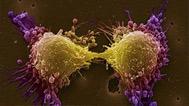 健康生活远离癌症